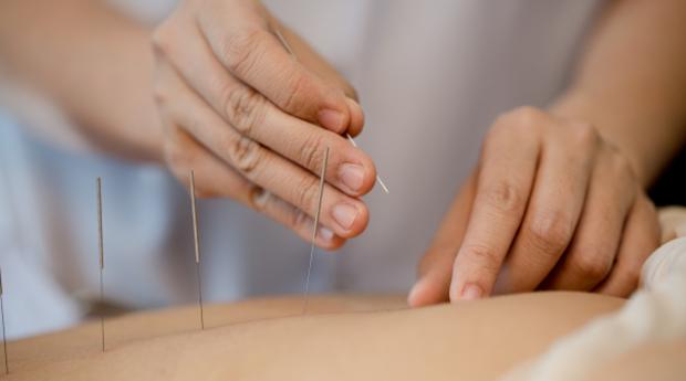 Acupunctura - Programa Slim Especializado em Emagrecimento, Redutor de Celulite ou Gordura Localizada!