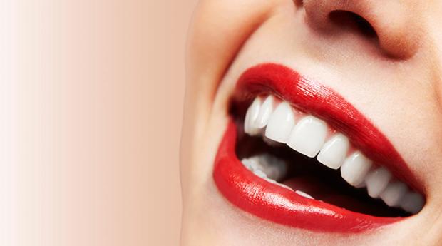 Limpeza Dentária Completa com opção de Branqueamento em Lisboa ou na Amadora!
