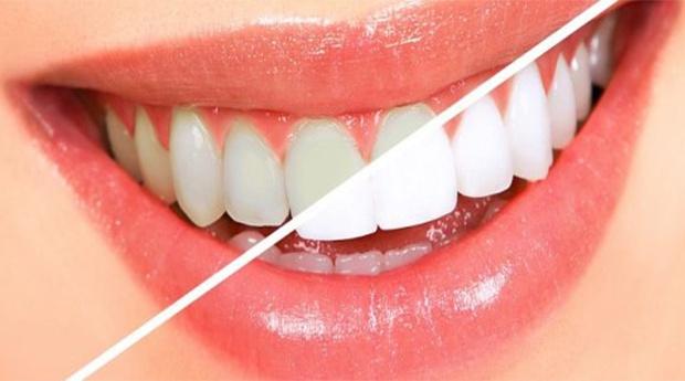 Sorriso Brilhante Branqueamento Dentario Para Fazer Em Casa Com